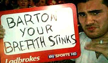 Bradley enjoying himself at the darts the week after he was headbutted by Joey Barton.